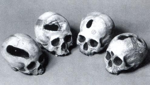 Κρανία του 10.000 π.χ., τα οποία έχουν